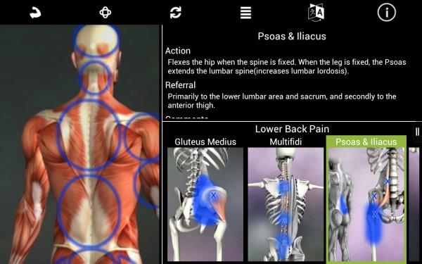 Muscle Trigger Point Anatomy - gute SchmerzApp mit wenig Berechtigungen kostenlos via Amazon App Shop