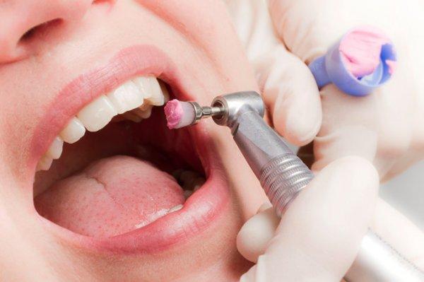 [Lokal FFM] 1 oder 2 professionelle Zahnreinigungen für 29,90 € oder 49,90 € bei GROUPON