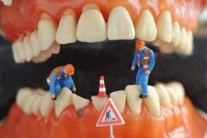 Zahnzusatzversicherung mit 30€ Amazon Gutschein + 15€ Shoop Cashback bei ErgoDirekt